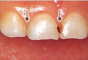 虫歯の例1