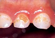 虫歯の例3