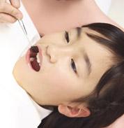 子供の虫歯イメージ