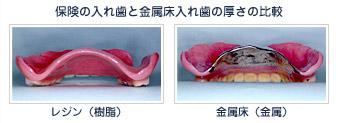 保険の入れ歯と金属床入れ歯の厚さの比較
