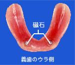 義歯のウラ側