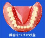 義歯をつけた状態