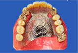 コーヌスクローネ入れ歯が入ったところ