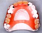 ノンクラスプ入れ歯イメージ1