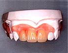 ノンクラスプ入れ歯イメージ2